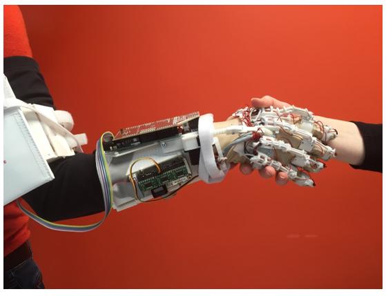 23 étudiants de l'ISEN créent  le gant bionique imprimable en 3D :  Print'Hand  Redonner vie à une main inerte
